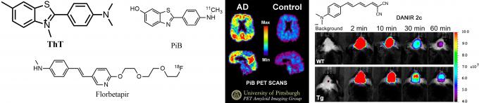 图2 以ThT为源,发现的两个高效PET探针PiB和Florbetapir;右为PiB-PET图,左为患者,右为健康人